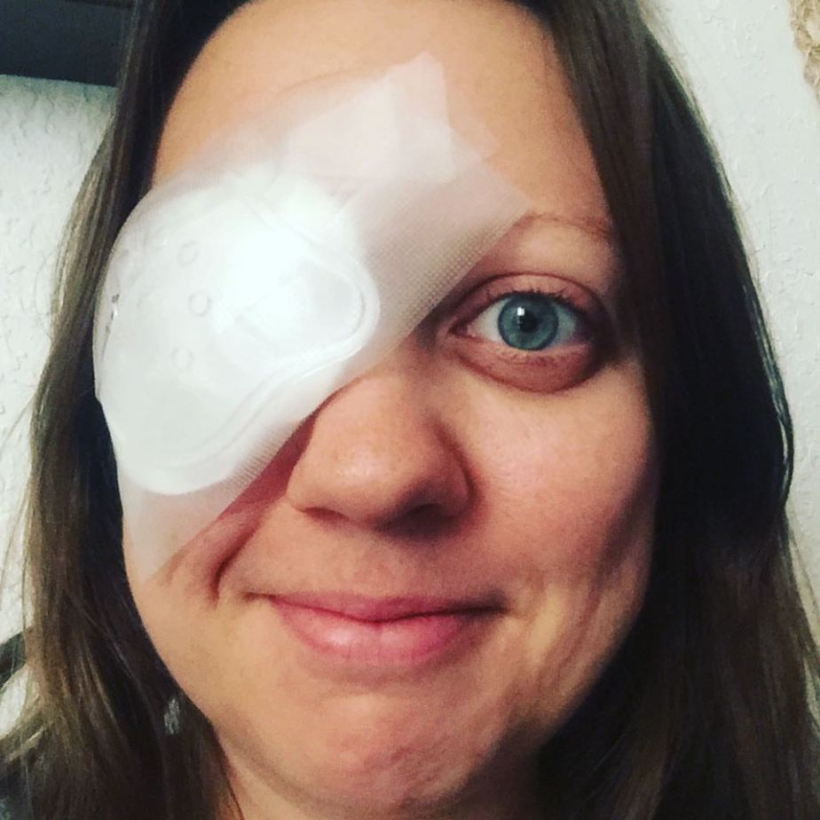 Getting Eye Surgery in the MiddleEast